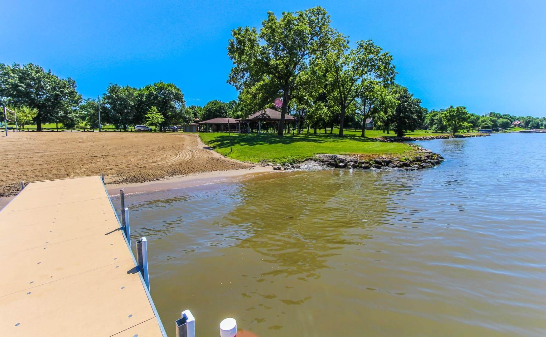Clover Ridge Resort Lakeview